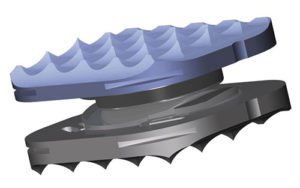 Rotaio® Cervical Disc Prosthesis